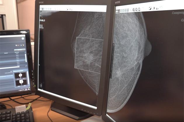 В Кузбассе реализуют программу по раннему выявлению рака груди