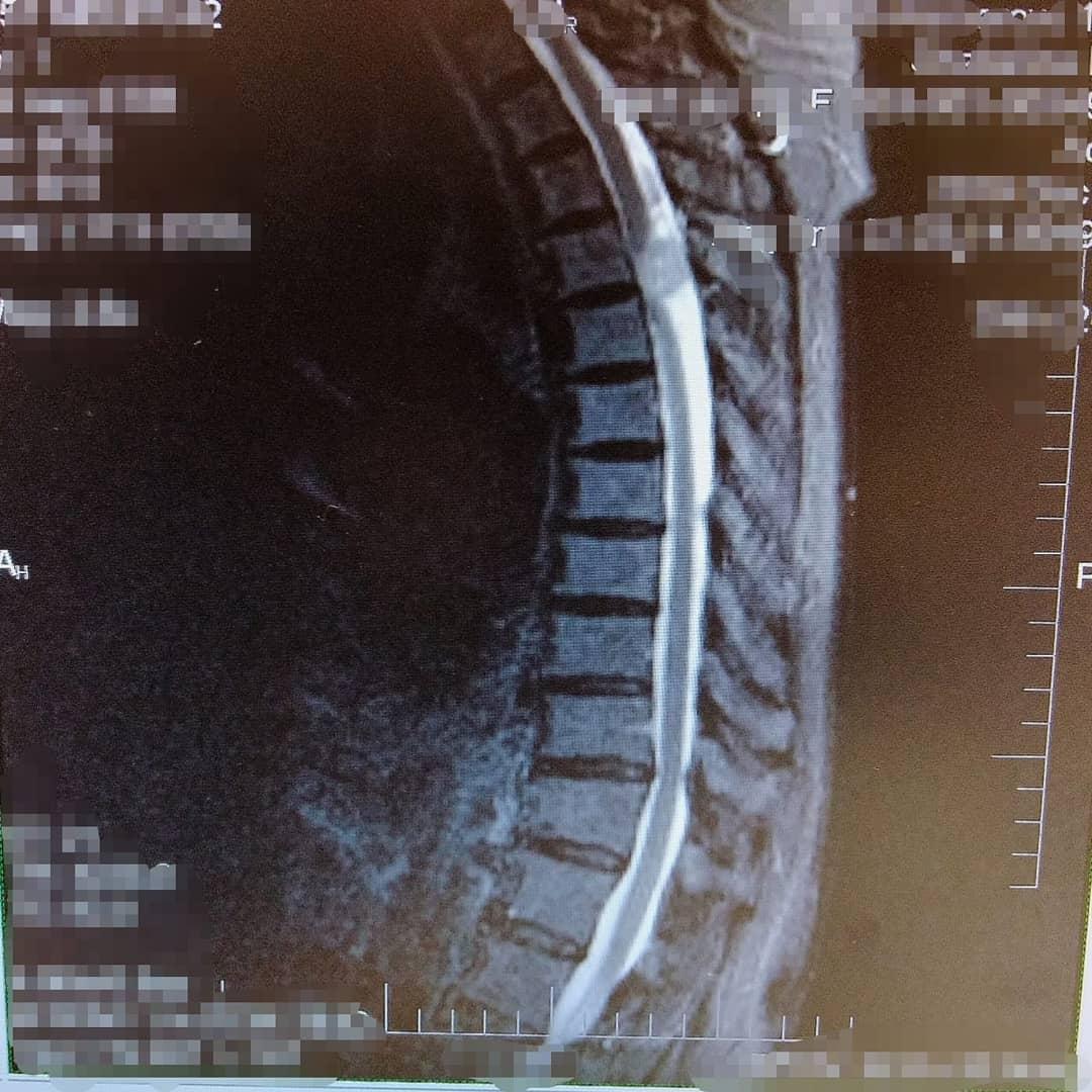 В Кемерове врачи прооперировали пенсионерку с редкой опухолью спинного мозга