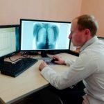 Кузбассовцы смогут пройти флюорографию без направления врача